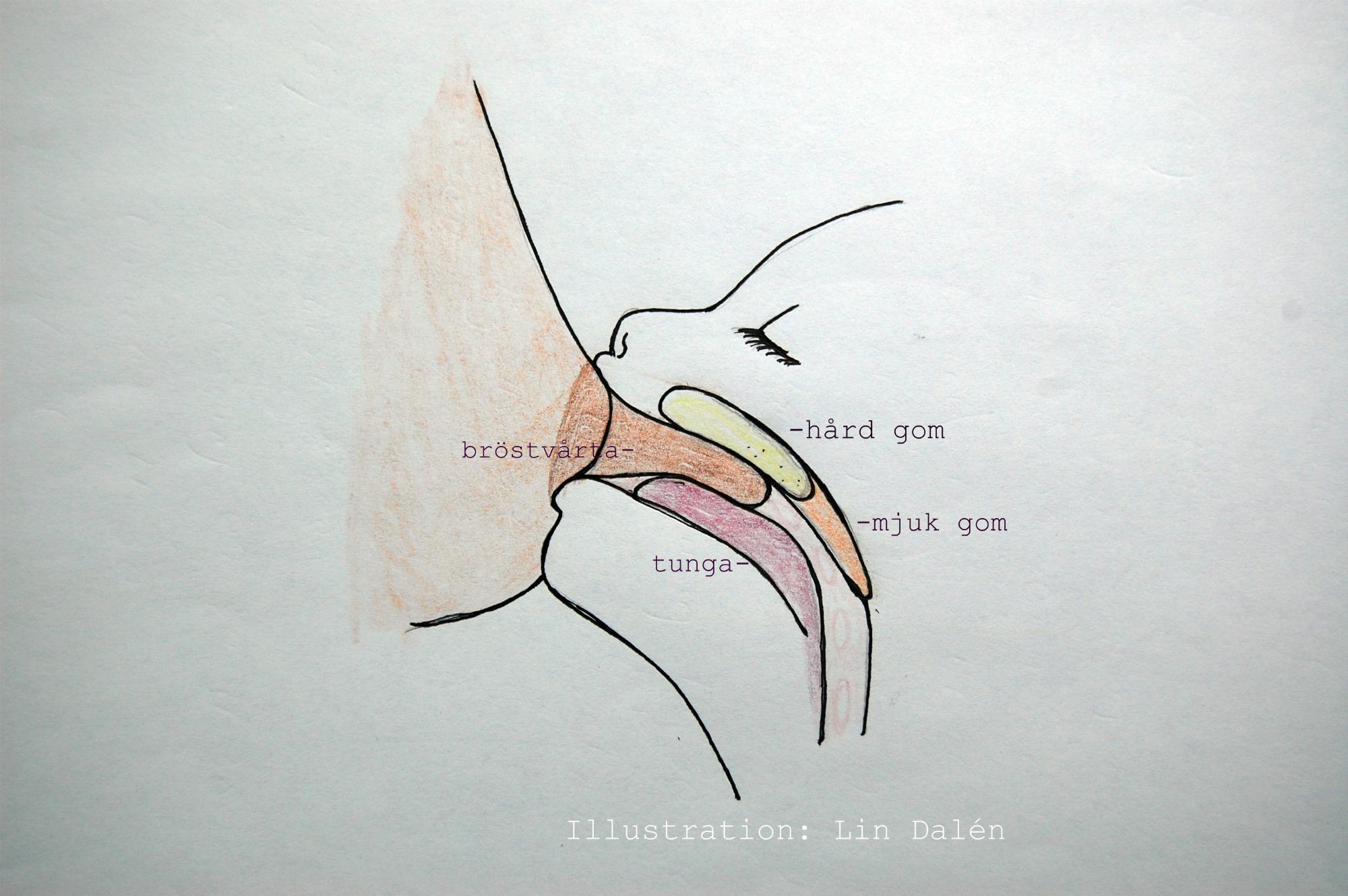 sår på bröstet amning